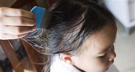 How To Get Rid Of Lice In Your Child's Hair