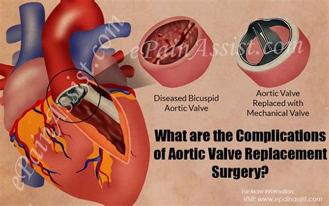 complications  aortic valve replacement