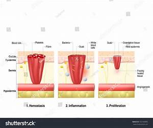 Wound Healing Process Body Tissue Repairs Stock Vector