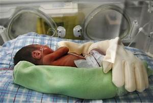 Novel Zaky Hands used to improve lives of premature babies