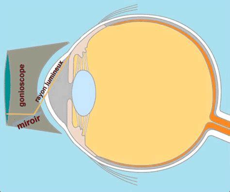 le colley tares oculaires pour y voir plus clair