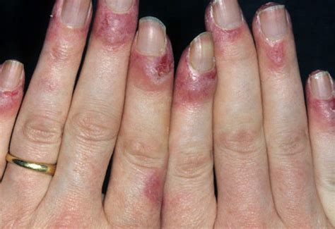 sore nail beds lupus rash pictures