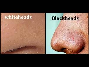 How to get rid of blackheads and whiteheads on nose, face ...