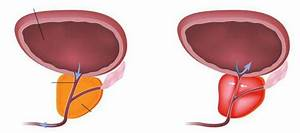Медицинские препараты для лечение простатита