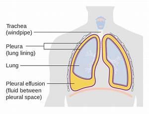 Diagram Of The Lungs Pleura