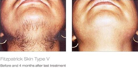 laser hair removal   afters laser spa group