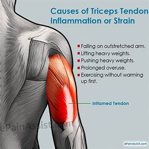 Triceps Tendon Inflammation Or Strain