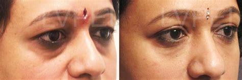 Juvederm for under eye hollows