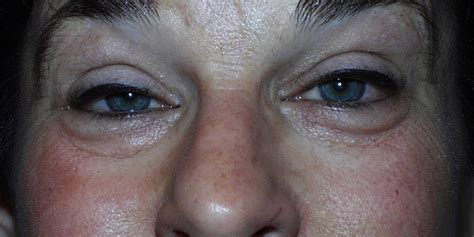 ptosis american academy  ophthalmology