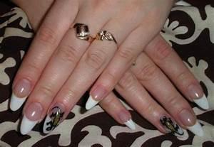 Как лечить грибок на ногтях рук волнистый