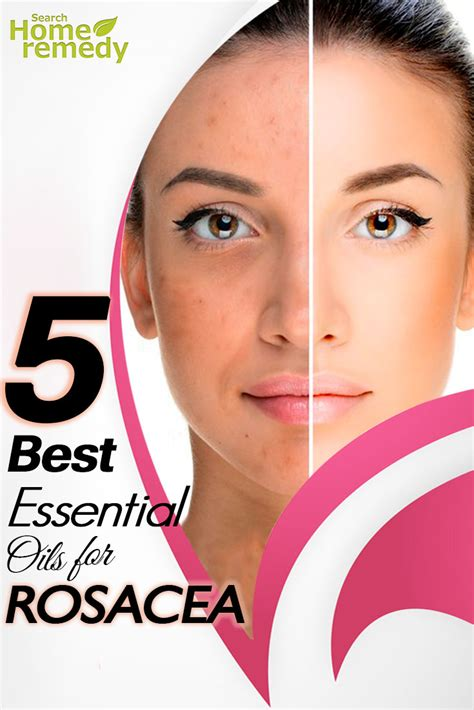 best for rosacea the 5 best essential oils for rosacea essential oils for