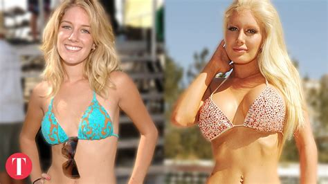 botched plastic surgery fails  ruined celebrities