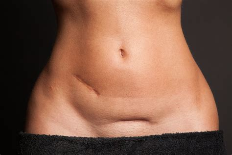 c section scars exercises to avoid after a c section strong