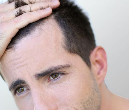 Perte De Cheveux  Causes Et Origines  Centre Clauderer