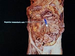 Print Bio 272 Digestive System Lab Exam Study Guide