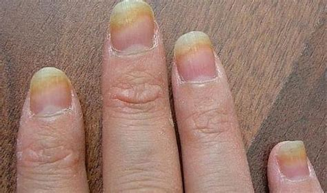 Выбираем праймер для ногтей – разновидности бренды советы по использованию