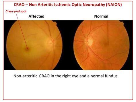 Ischemic Of Optic Neuropathy, Optic Neuropathy (ischemic