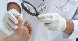Псориаз экзема дерматит лечение