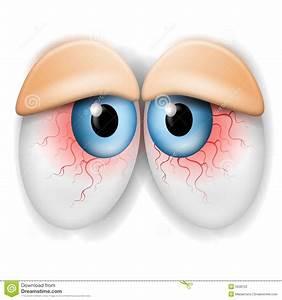Droopy Tired Bloodshot Eyes Stock Photography - Image: 5508722