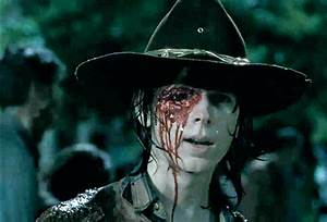 [PIC] Carl's Eye Socket On 'The Walking Dead' — See What's ...