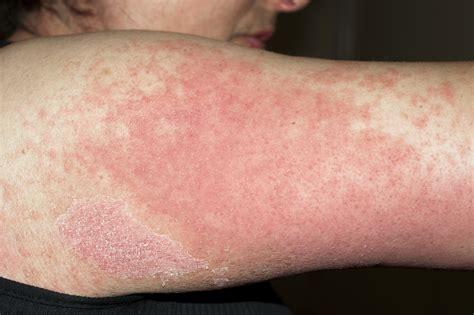 Allergic Reaction Rash Choice Image Diagram Writing