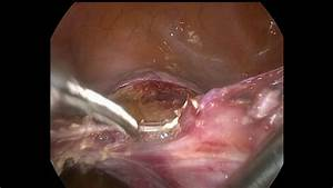 Tlh For 10cm Post Wall Uterine Fibroid By Dr Ajay Aggarwal