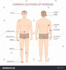 Psoriasis Illness Diagram Human Body Skin Stock Vector