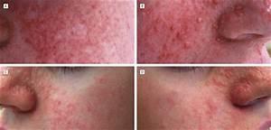 Topical Rapamycin  A Novel Approach To Facial