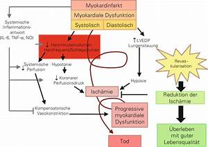 Pathophysiological Background Of Cardiogenic Shock  The
