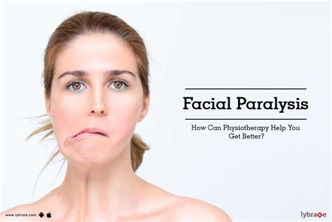 Facial Paralysis - How Can Physiotherapy Help You Get ...