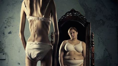 anorexia nervosa  homeopathic treatment