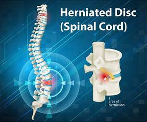 Herniated Disc Clinical Trials  Are They An Option For You