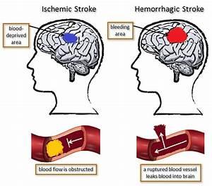 Ischemic Versus Hemorrhagic Stroke