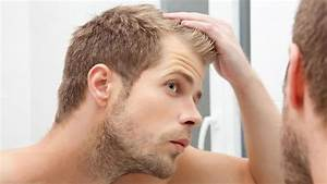 Can Low Testosterone Cause Hair Loss   U2013 Treatments  U0026 Medications