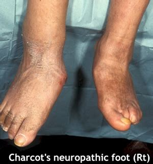 Diabetic Foot. Wife Signs. Bronchus Signs. Clipart Paris Signs. Eal Signs. Gauge Signs Of Stroke. Striped Signs. Speech Bubble Signs Of Stroke. Motorbike Hand Signs