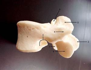 Anatomy Lab Photographs Vertebrae