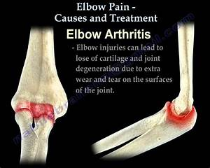Elbow Pain Causes And Treatment
