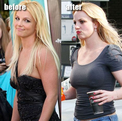 Britney Spears Plastic Surgery Before And After Pictures