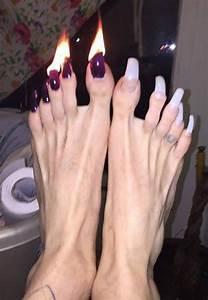 got my toenails trimmed faxo