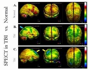 Advanced Neuroimaging Can Guide Interventions In Traumatic