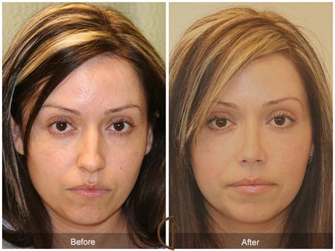 Before & After Rhinoplasty 7  Orange County Facial. Best Immigration Lawyer In New York. Fdic Insured Money Market Mba Duke University. Nissan Dealers Phoenix Az Rebuilt Title Loans. 24 Hour Locksmith Indianapolis. National Association Of Trade And Technical Schools. Individual Health Insurance Plans For Children. Web Based Trouble Ticket System. Fd50 Credit Card Machine Short Sale Processor