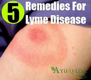 5 Lyme Disease Herbal Remedies, Treatments And Cures ...