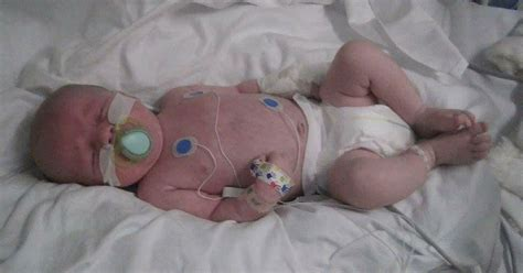 newborn baby put  induced coma   life support