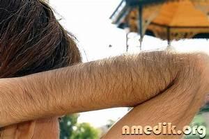 Как заживают удаленные лазером бородавки