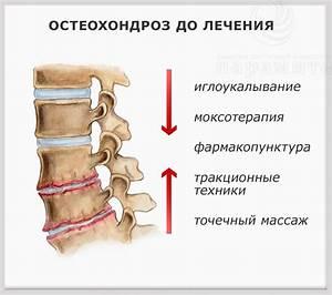 Артроз локтевого сустава лечение на начальных стадиях