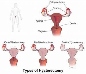 Pain After Hysterectomy