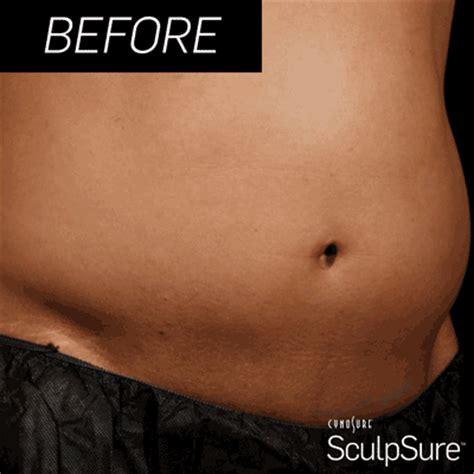 rid  stubborn fat  redefine  body