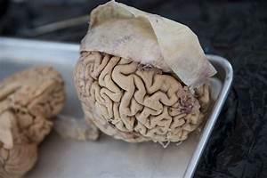 Brain Awareness Week 2013 Jonesblog