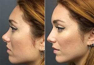 Prix D Un Piercing Au Nez : rhinoplastie tunisie prix chirurgie esthetique du nez ~ Medecine-chirurgie-esthetiques.com Avis de Voitures