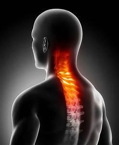 Боли в пояснице остеохондроз лечение мидокалм
